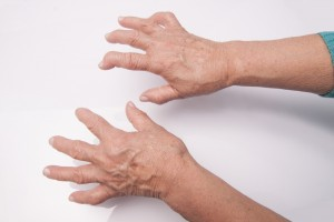 Common Form Of Arthritis